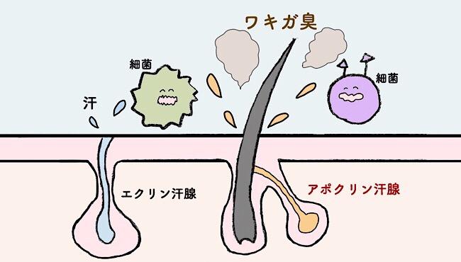 ワキガ臭の原因